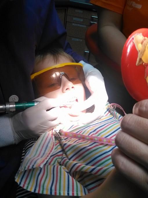 Чистка детских зубов у стоматолога